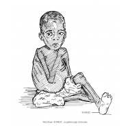 Child with kwashiorkor (Artist: Shaw, Rod)