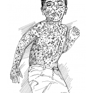 Child with measles (Artist: Shaw, Rod)