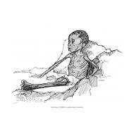 Child with marasmus (Artist: Shaw, Rod)