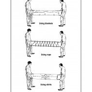 Improvised stretchers (Artist: Shaw, Rod)