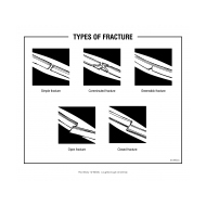 Types of fracture (Artist: Shaw, Rod)